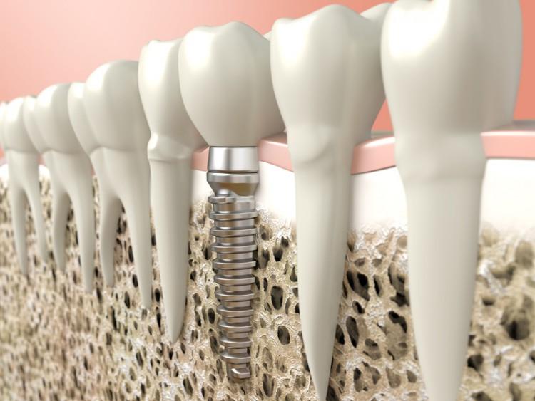 Implantología y Cirugía Oral
