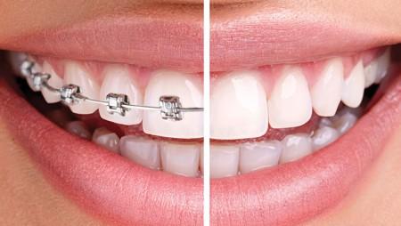 Centre Odontològic Eurodental BCN - Ortodoncia