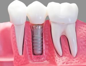 eurodentalbcn-implantes-dentales